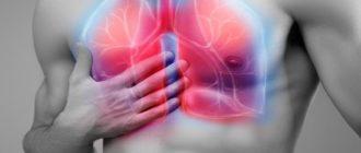 Алоэ при пневмонии